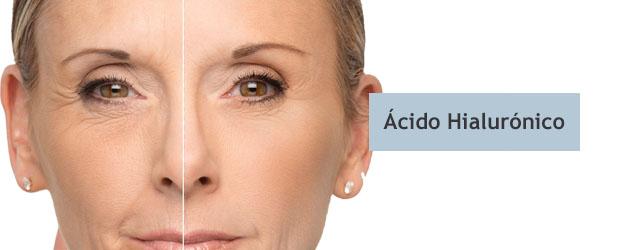 Tratamiento acido Hialuronico